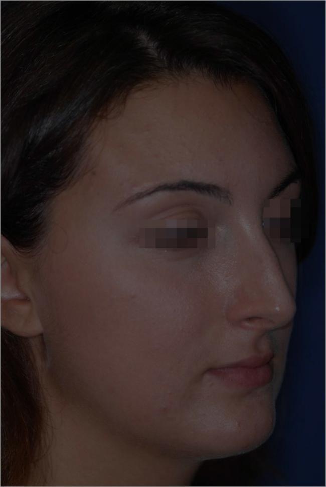 Rinoplastica gibbi/gobbe prima e dopo