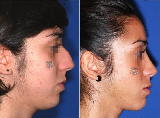 nose job before and after bump