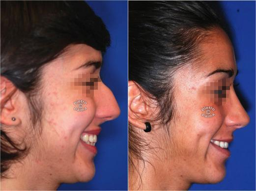 nose job before and after bump 1