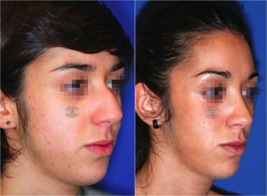 nose job before and after bump 2