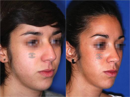nose job before and after bump 3
