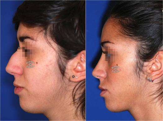 nose job before and after bump 4