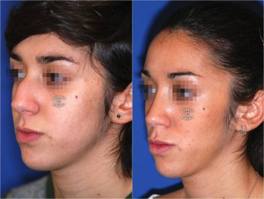nose job before and after bump 5