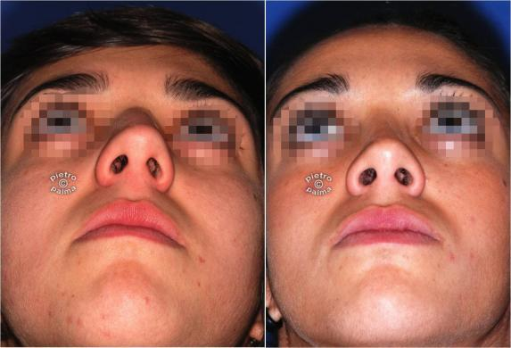 nose job before and after bump 8