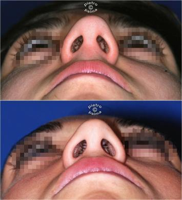 nose job before and after bump 9