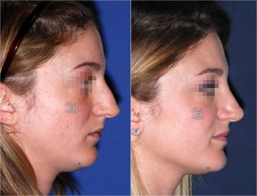 dorsal hump removal woman before and after 1