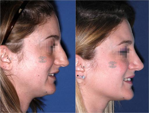 dorsal hump removal woman before and after 5