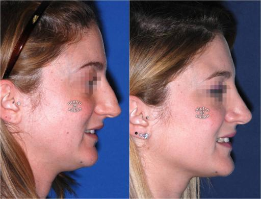 dorsal hump removal woman before and after