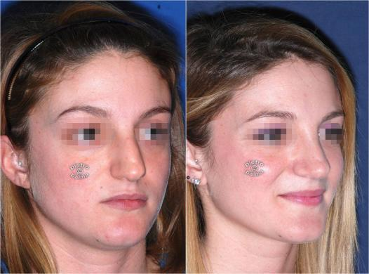 dorsal hump removal woman before and after 4
