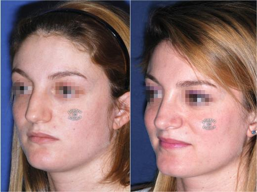 dorsal hump removal woman before and after 2
