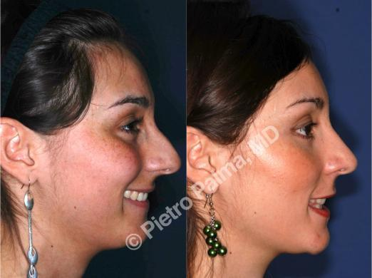 rhinoplasty hump removal before and after 1