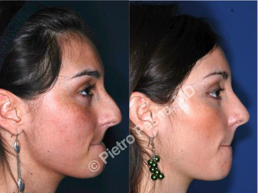 rhinoplasty hump removal before and after 2