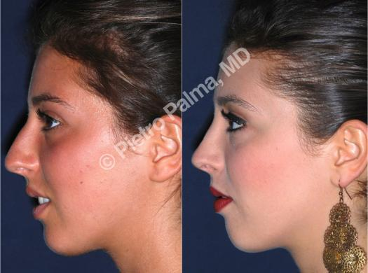 rhinoplasty before and after bump 1