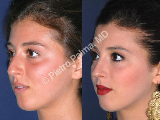 rhinoplasty before and after bump 4