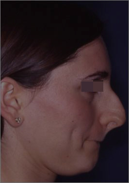 5over projected nose