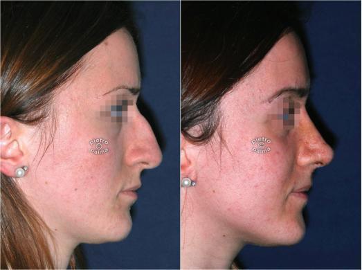 rinoplastica prima e 7 giorni dopo