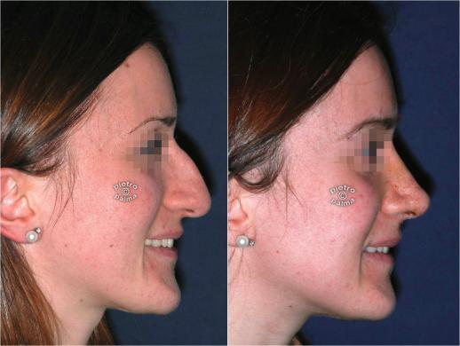 rhinoplasty before and after 7 day