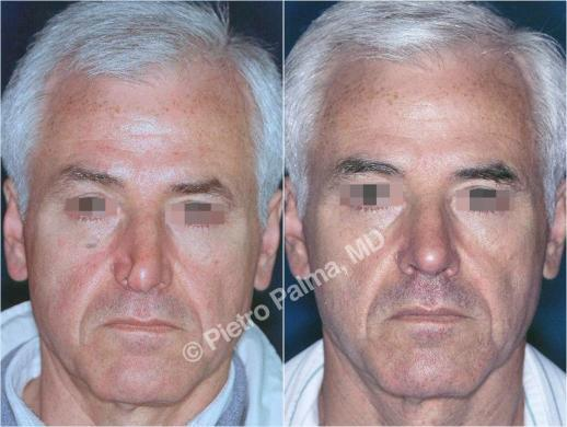 rhinoplasty before and after special cases