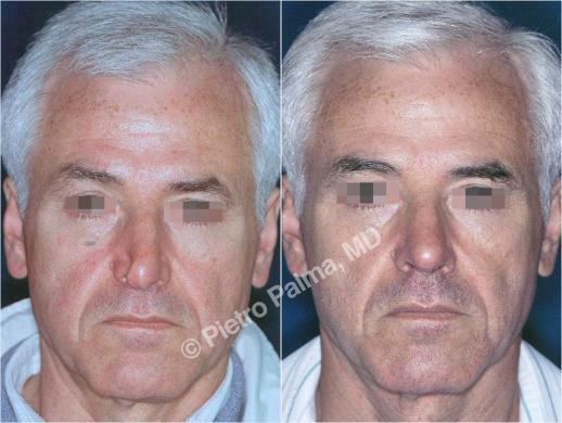 rinoplastica prima e dopo casi speciali uomo