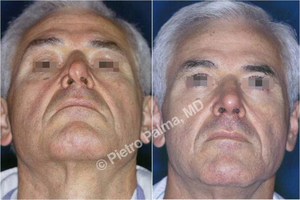rhinoplasty before and after special cases 1
