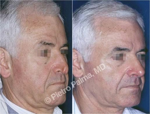 rinoplastica prima e dopo casi speciali uomo 1