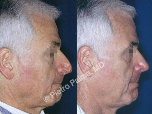 rinoplastica prima e dopo casi speciali uomo 3