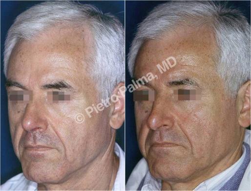 rinoplastica prima e dopo casi speciali uomo 2