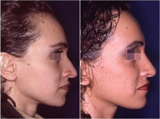 nose job before and after special cases woman 3