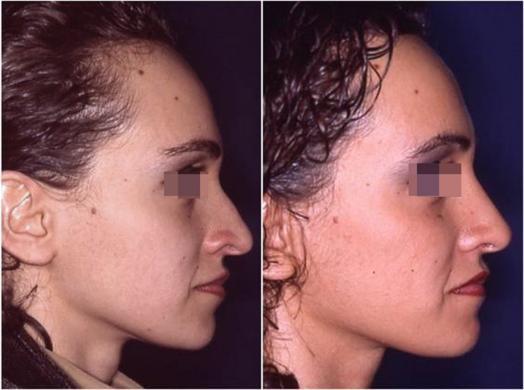 rinoplastica prima e dopo casi speciali donna