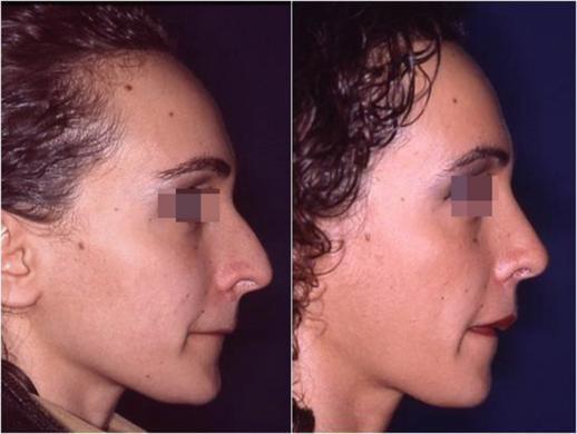 rinoplastica prima e dopo casi speciali donna 1