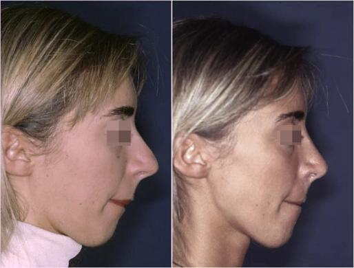 setto nasale deviato 1