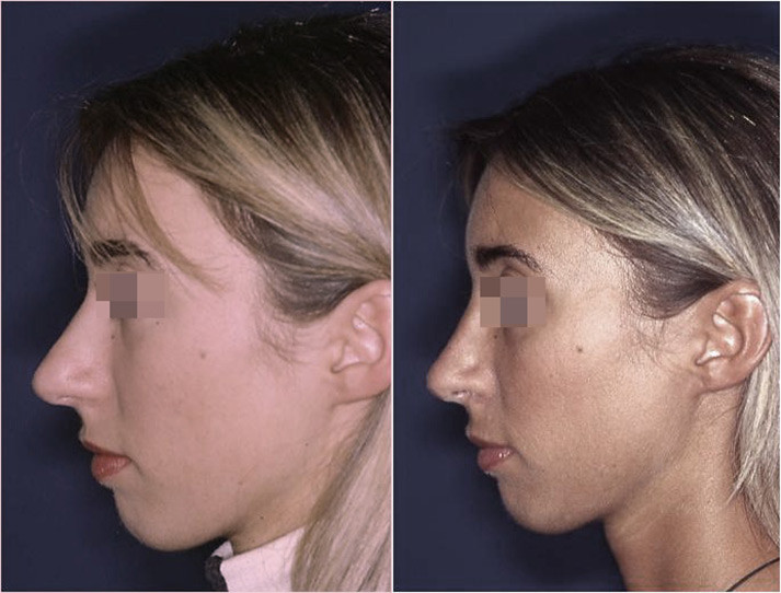 setto nasale deviato prima e dopo 1