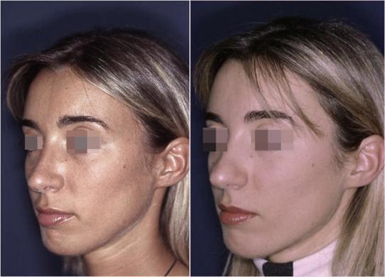 setto nasale deviato prima e dopo 2