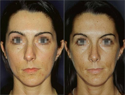 setto nasale deviato prima e dopo 3