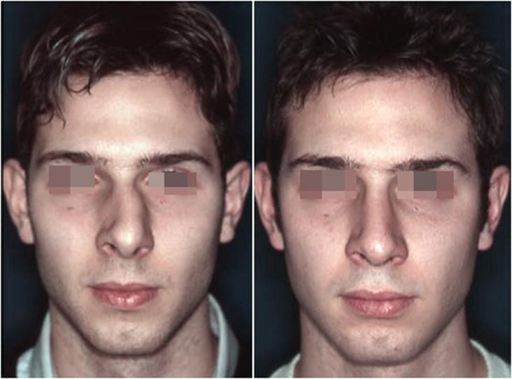 Naso deviato prima e dopo