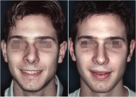 Naso deviato uomo prima e dopo