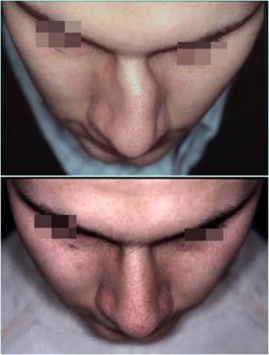Naso deviato uomo prima e dopo 1