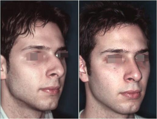 Naso deviato uomo prima e dopo 2