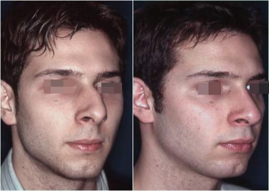 Naso deviato uomo prima e dopo 3