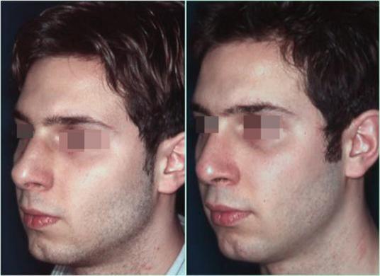 Naso deviato uomo prima e dopo 4