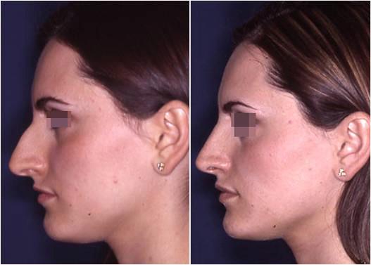 riduzione naso prima e dopo