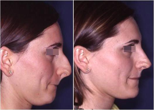 riduzione naso prima e dopo 1
