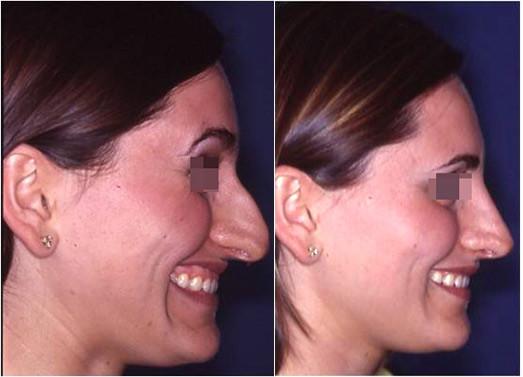riduzione naso prima e dopo 2