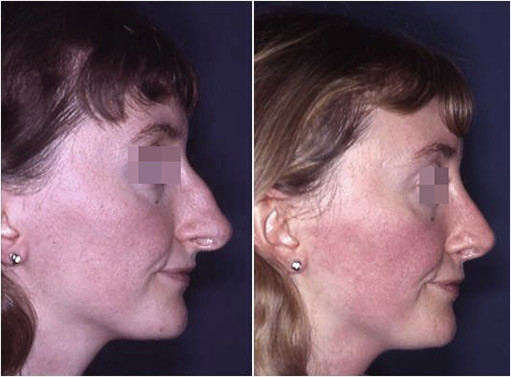 naso grande prima e dopo