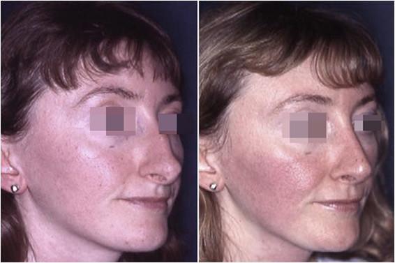 naso grande prima e dopo 1