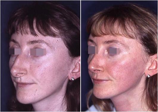 rinoplastica punta del naso grossa prima e dopo