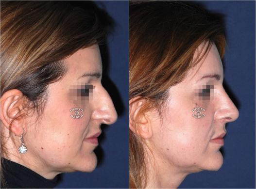 rinoplastica punta del naso prima e dopo 7