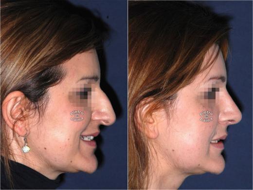 rinoplastica punta del naso prima e dopo 6