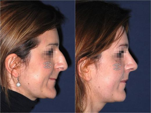 rinoplastica punta del naso prima e dopo
