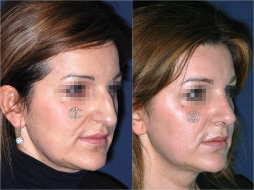 rinoplastica punta del naso prima e dopo 1